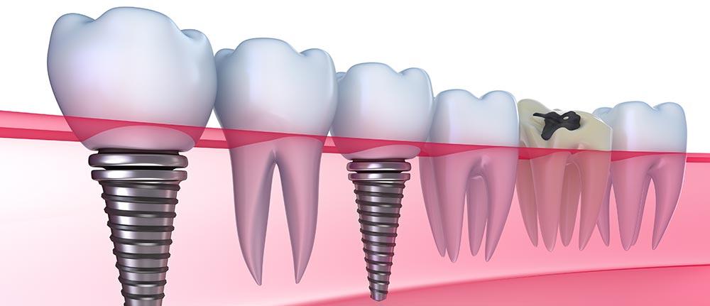 Dental Implants Tampa