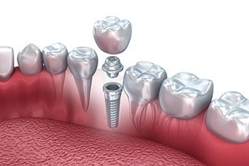 dental-implants-tampa-fl